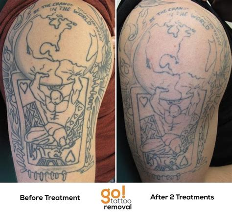 laser tattoo removal progress pin by go removal on removal in progress