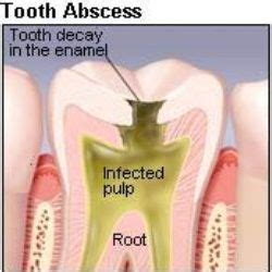 best home remedies for abscessed tooth health bath
