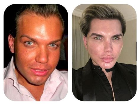 human ken doll before and after human ken doll reveals despair cyst daily