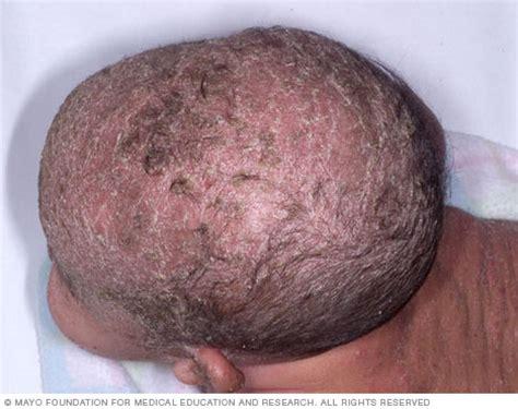 natural treatment for seborrheic dermatitis cradle cap seborrheic dermatitis symptoms and causes mayo clinic