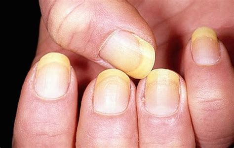 Finger Nail by 8 Fingernail Health Warnings You Should Never Ignore
