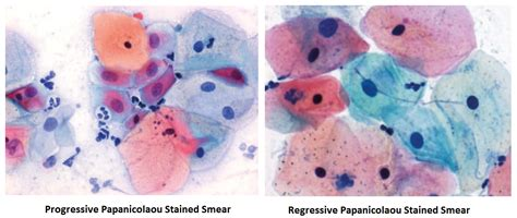 papanicolaou test papanicolaou pap staining introduction principle