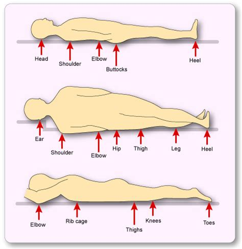 pressure ulcer locations diagram common of pressure ulcers when lying