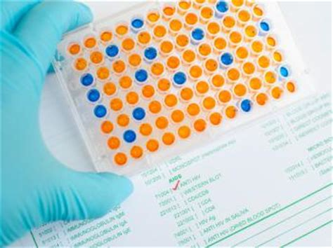Does Background Check Test Western Blot And Elisa Tests For Hiv What To Expect