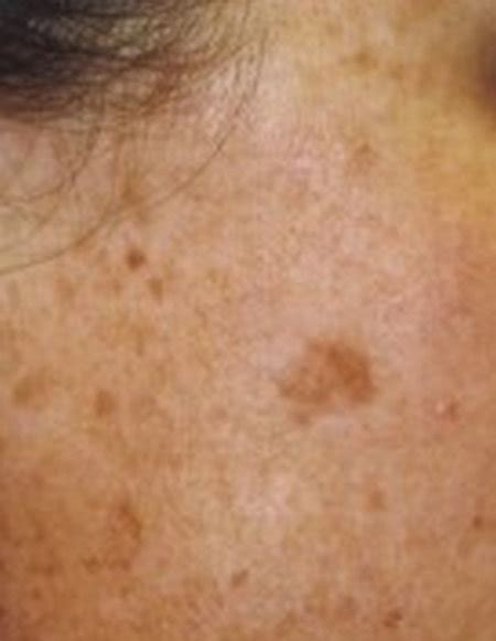light spots on skin from sun sunspots on skin what are they and how to get rid of