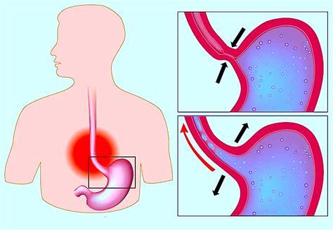 esofagite alimenti da evitare dieta con esofagite erosiva