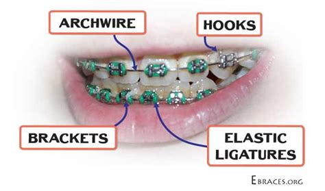 bands with a color in their name you don t to be a genius to choose braces colors