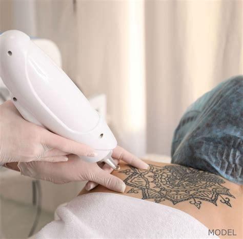 tattoo removal monterey removal stock model2 california skin institute