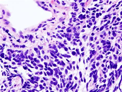 benign mesothelioma lung cancer small cell lung carcinoma metastasis