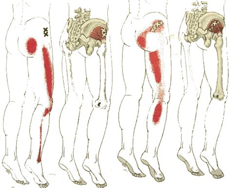 Pelvic Floor Trigger Points by Palpation Techniques Surface Anatomy For