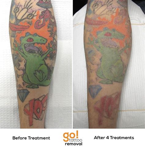 easy tattoo removal this multicolored sleeve is showing progress but it hasn t