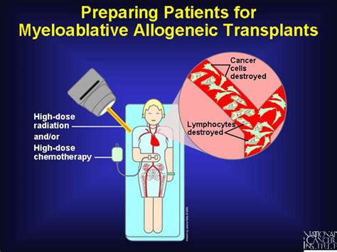 19 Preparing Patients For Myeloablative Allogeneic