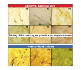 stool color pictures stool color chart 6 free for pdf