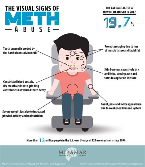 Meth Detox Symptoms by The Visual Signs Of Meth Abuse Not A Pretty Sight Visual Ly