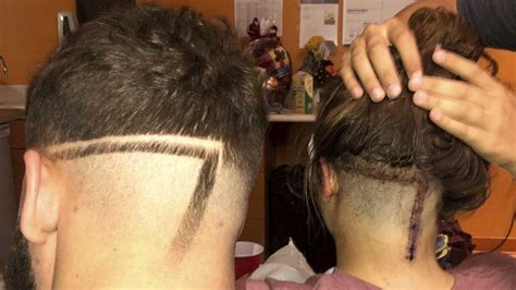 hair cuts to cover up brain surgery big brother gets haircut to mimic sister s 10 inch brain