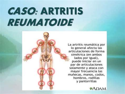 artritis reumatoide cuadro clinico artritis reumatoide caso clinico