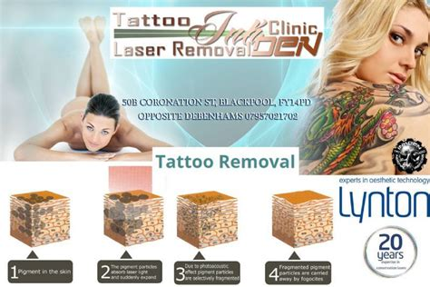 tattoo removal blackpool inkden studio and laser removal clinic tattooist