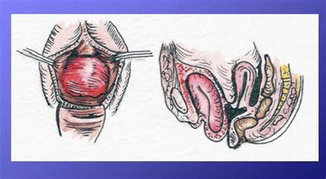 prolapsed bladder symptoms cystocele cystocele bladder prolapse causes symptoms and treatment