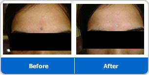 tattoo removal in pune quot dr pradyumna vaidya is well known skin specialist in pune
