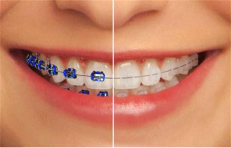 braces colors for teeth tlc dental centre singapore s dentist orthodontist