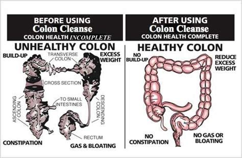Detox Cleanse Before And After by Health Of The Colon And Colon Hydrotherapy