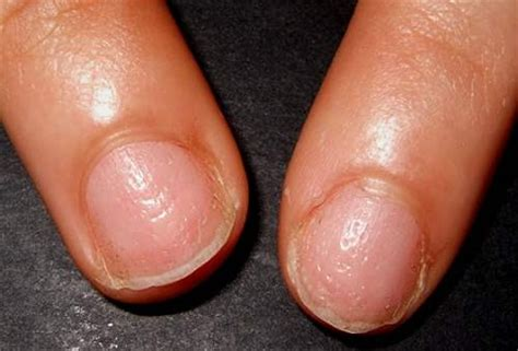 dent in nail bed is black streaks in your fingernails a cause for concern