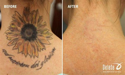 laser tattoo removal   expect delete tattoo