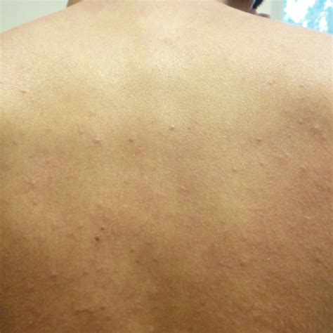 allergic reaction to bed bugs bed bug photos rutgers njaes