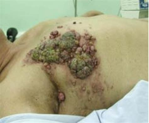 catalepsia casos reales colon cancer cancer colon metastasis