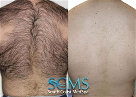 male public hair removal pictures male public hair removal pictures laser public hair