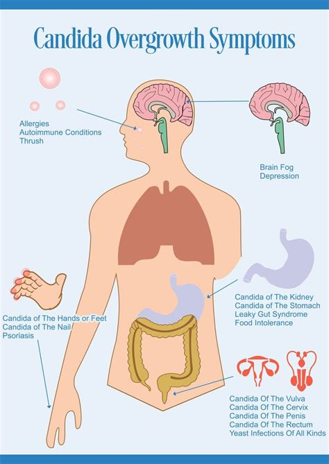 Stool Test For Candida Overgrowth by 9 Best Cleanse Colon Images On Colon