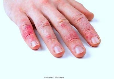 prurito alle gambe dopo la doccia prurito sulla pelle secca con macchie rosse puntini