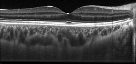 oct sectioning related keywords suggestions for oct retina