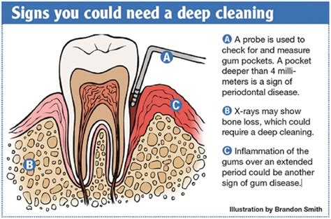 dental cleaning cost teeth cleaning cost procedure and side effects