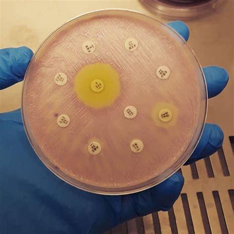 analisi completa delle urine con esame sedimento antibiogramma urine leggi la guida completa all esame