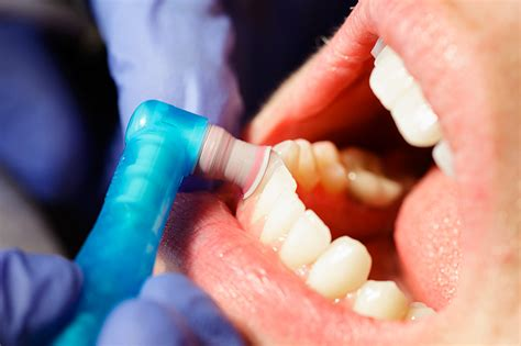 teeth cleaning preventive dentistry in mount vista vancouver wa mount vista family dental