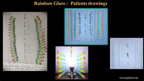 pattern glare visual stress rainbow glare symptoms causes treatment docteur