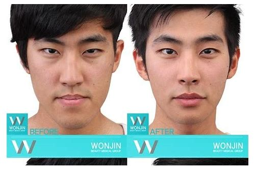 best deals on plastic surgery