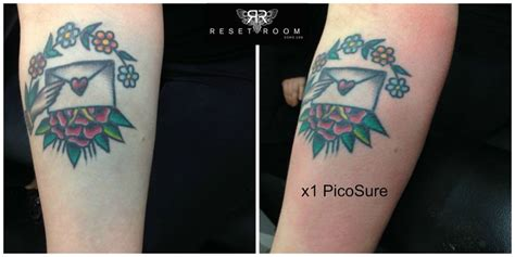 blowout removed tattoos pinterest laser tattoo