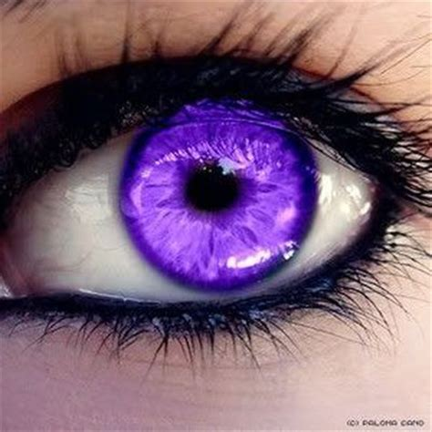 purple eye color purple eye disease symptoms and causes