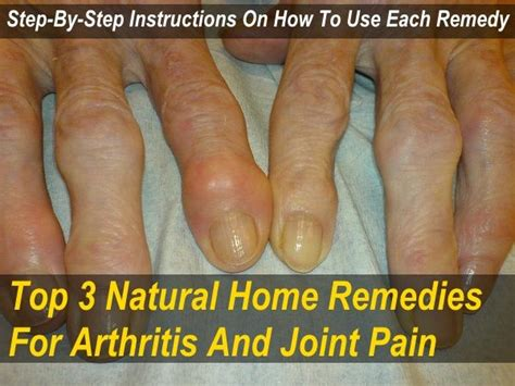 3 home remedies for arthritis joint