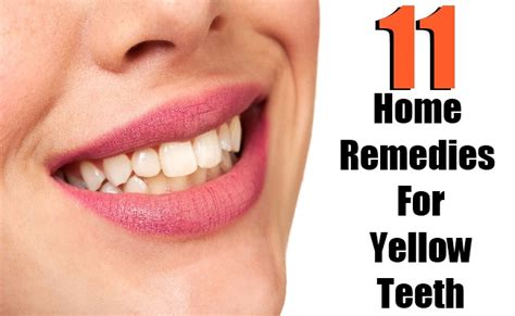 11 best home remedies for yellow teeth search home remedy
