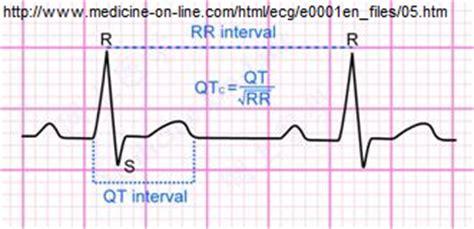 calculator qtc telemetry technician course measuring intervals qt