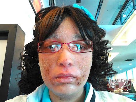 woman growing fingernails in hair follicles now 1 million omg woman develops strange condition where fingernails