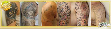 complete tattoo removal laser removal services in houston