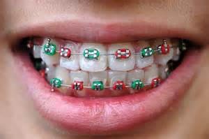 braces color colored braces braces orthodontic specialists