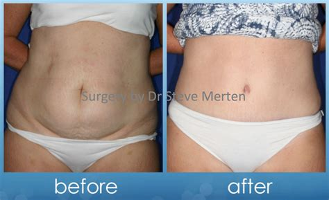 does insurance cover tummy tuck after c section tummy tuck abdominoplasty sydney
