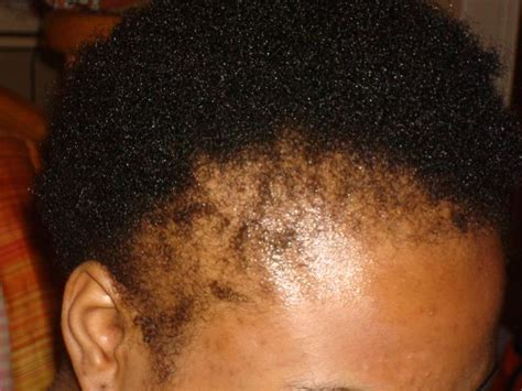 hairstylist frees woman with severe traction alopecia hair loss in african american women dermhair clinic 1