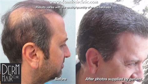 Types Of Hair Transplant by Phase Two Of Patient S Bht Operation