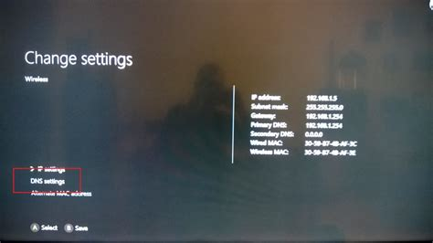 best dns address how to smart dns xbox one tutorial hideipvpn services